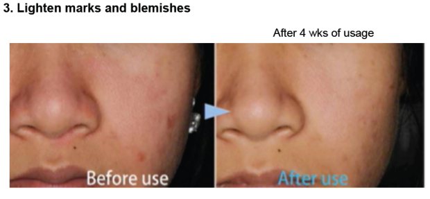 results after using Biore Skin Caring Cleanser Series